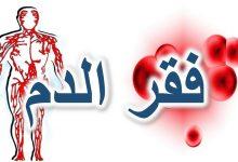 صورة تاريخ مرض فقر الدم المنجلي وأفاق التكفل بالمرضى في ولاية الطارف
