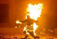 صورة ام البواقي/ وفاة شاب عشريني حرقا بعد اضرام النار في جسده بام البواقي .