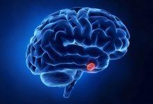 صورة علماء ينجحون في اكتشاف غدد جديدة في مخ الانسان .